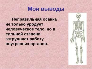 Мои выводы Неправильная осанка не только уродует человеческое тело, но в силь...