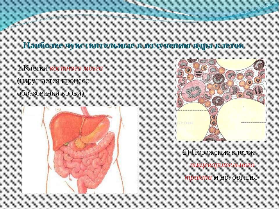 Наиболее чувствительные к излучению ядра клеток 1.Клетки костного мозга (нару...