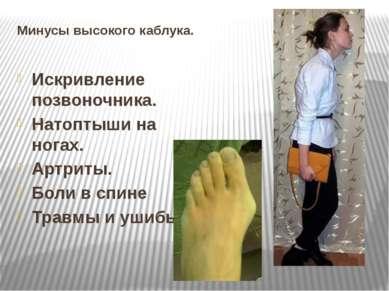 Минусы высокого каблука. Искривление позвоночника. Натоптыши на ногах. Артрит...