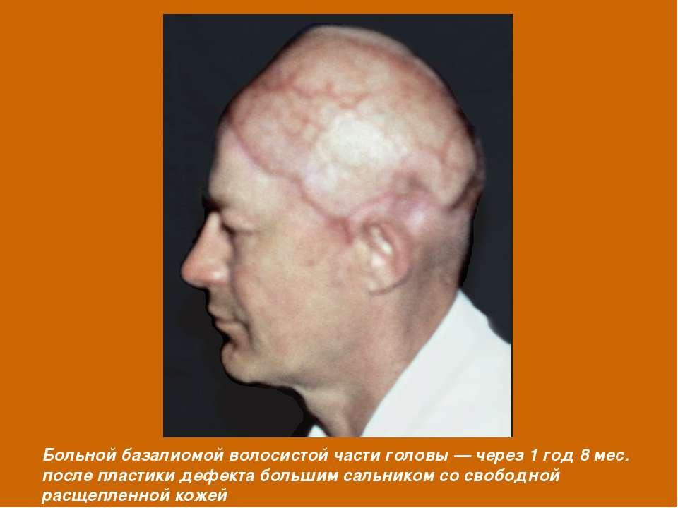 Больной базалиомой волосистой части головы — через 1 год 8 мес. после пластик...