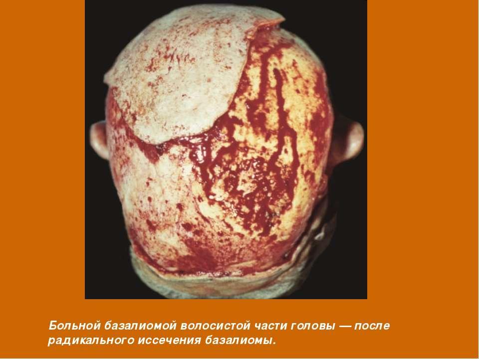 Больной базалиомой волосистой части головы — после радикального иссечения баз...