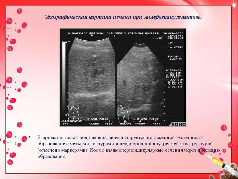 Эхографическая картина печени при лимфогранулематозе. В проекции левой доли п...