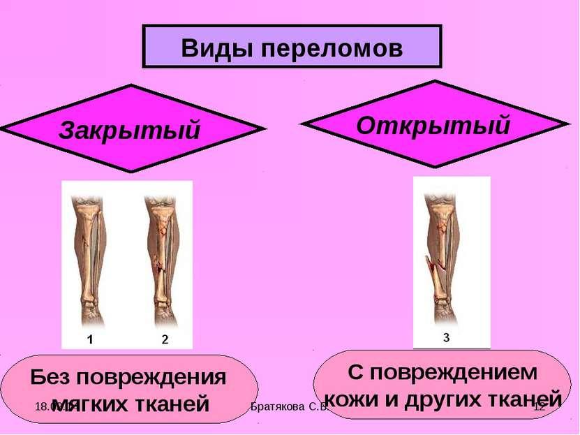 Виды переломов Закрытый Открытый Без повреждения мягких тканей С повреждением...