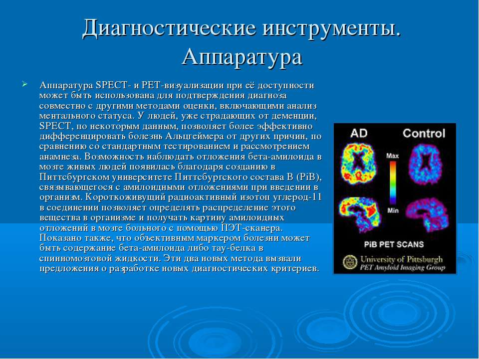 Диагностические инструменты. Аппаратура Аппаратура SPECT- и PET-визуализации ...