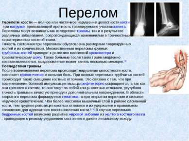 Перелом Перело м ко сти— полное или частичное нарушение целостностикостипр...