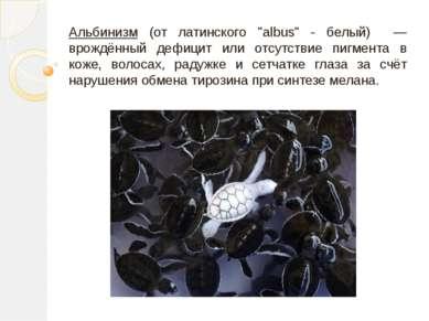 """Альбинизм (от латинского """"albus"""" - белый) — врождённый дефицит или отсутствие..."""