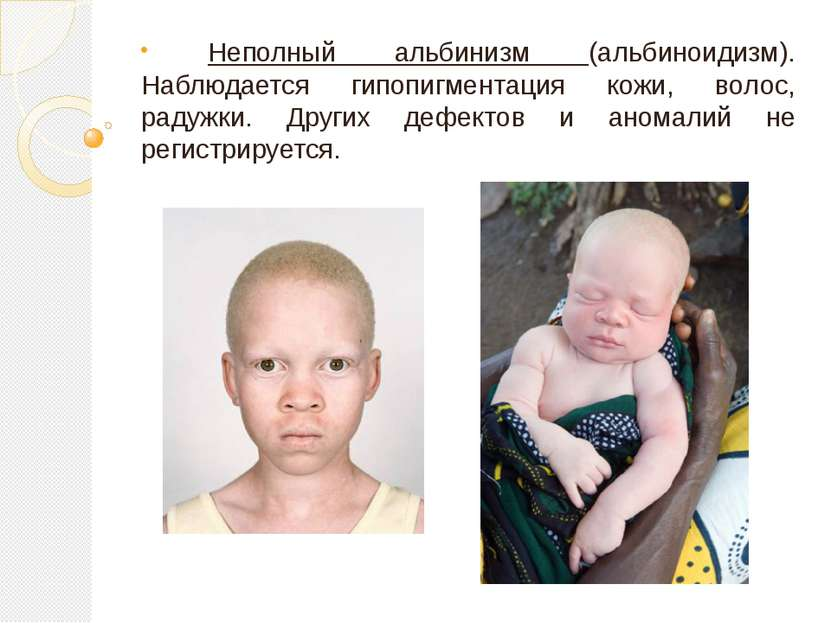 Неполный альбинизм (альбиноидизм). Наблюдается гипопигментация кожи, волос, р...