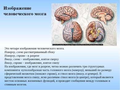 Это четыре изображения человеческого мозга. Наверху, слева рассматриваемый сб...