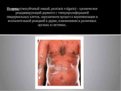 Псориаз (чешуйчатый лишай, psoriasis vulgaris) – хроническое рецидивирующий д...