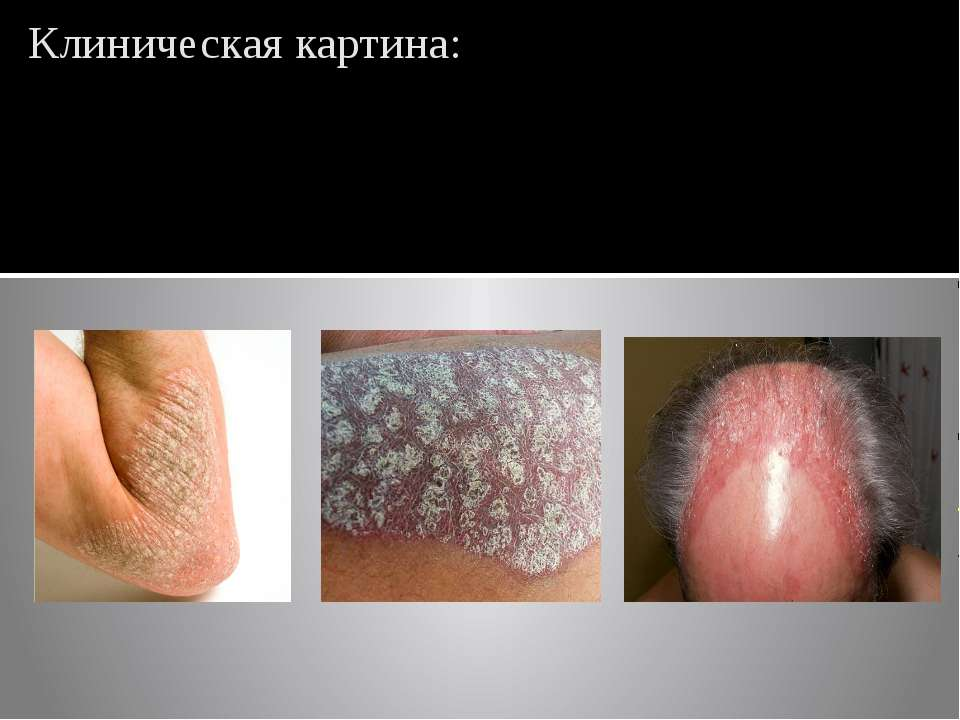Клиническая картина: Мономорфная папулезная псориатическая сыпь располагается...