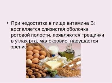 При недостатке в пище витамина В2 воспаляется слизистая оболочка ротовой поло...