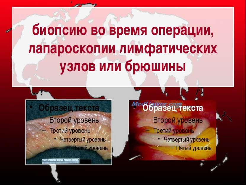 биопсию во время операции, лапароскопии лимфатических узлов или брюшины