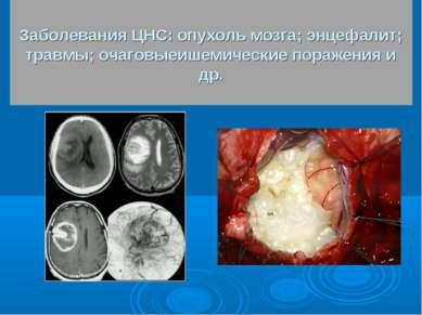 Заболевания ЦНС: опухоль мозга; энцефалит; травмы; очаговыеишемические пораже...