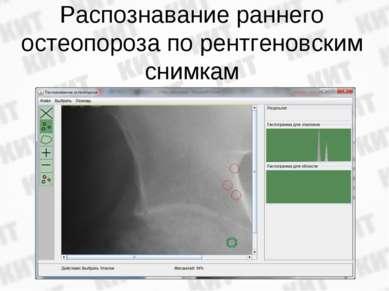 Распознавание раннего остеопороза по рентгеновским снимкам