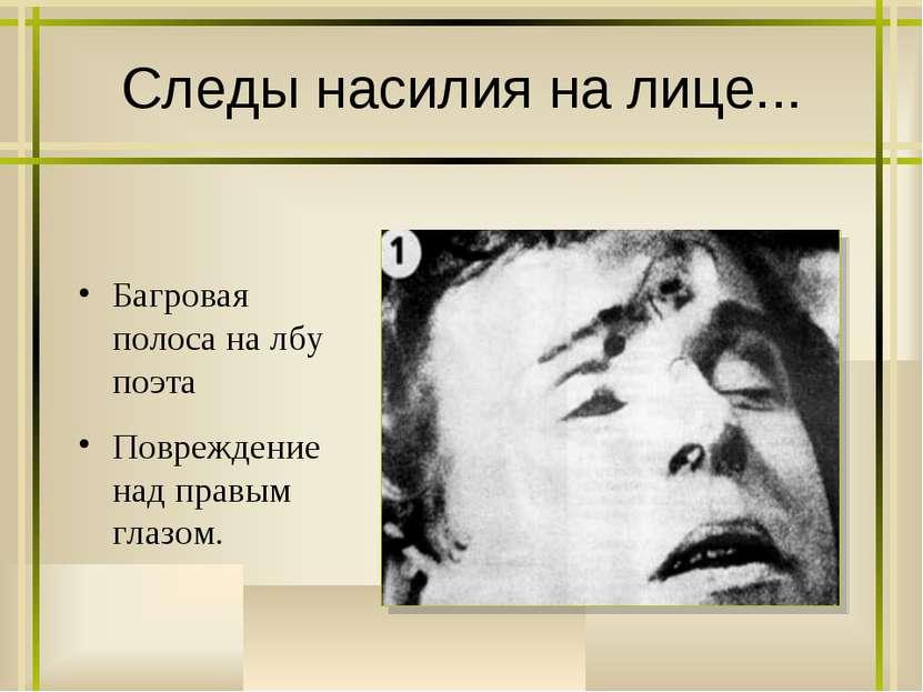 Следы насилия на лице... Багровая полоса на лбу поэта Повреждение над правым ...