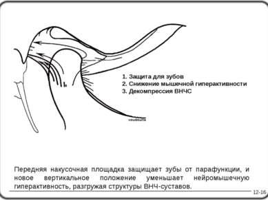12-16 1. Защита для зубов 2. Снижение мышечной гиперактивности 3. Декомпресси...