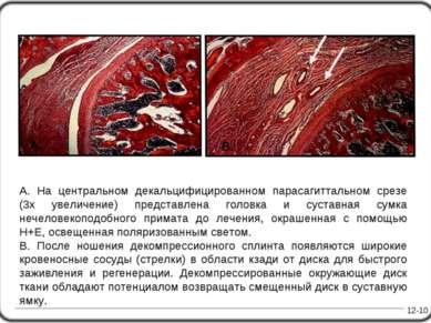 A. На центральном декальцифицированном парасагиттальном срезе (3х увеличение)...