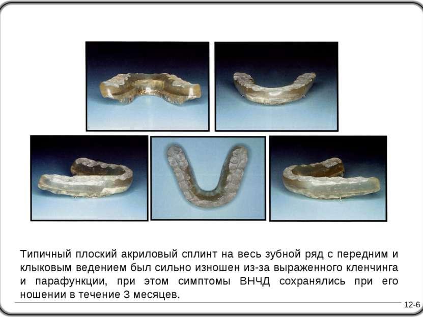 12-6 Типичный плоский акриловый сплинт на весь зубной ряд с передним и клыков...