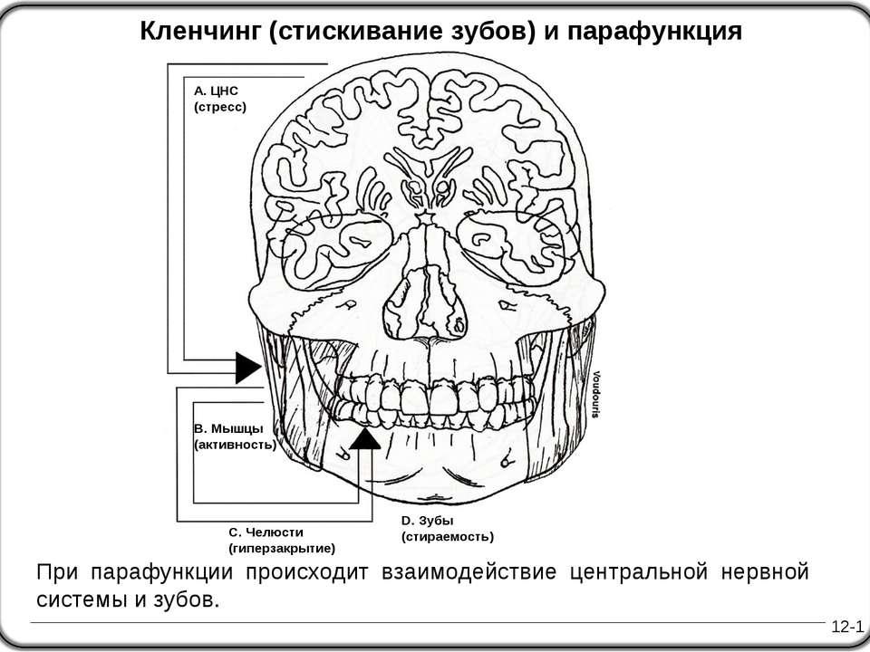 12-1 Кленчинг (стискивание зубов) и парафункция При парафункции происходит вз...