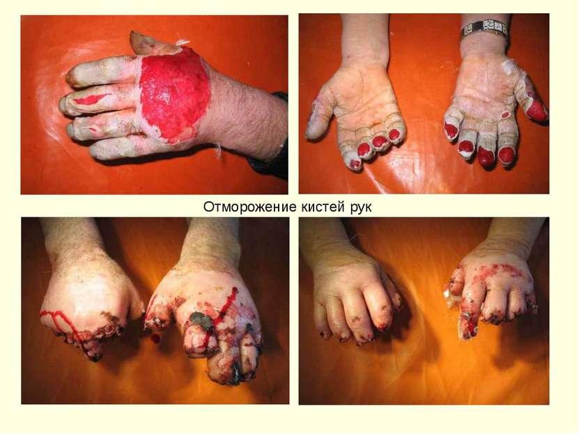Отморожение кистей рук