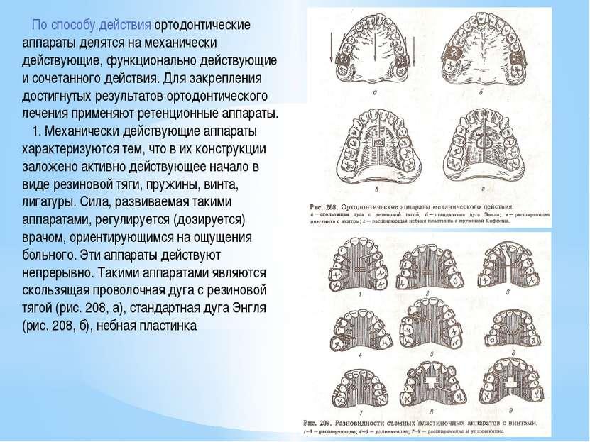 По способу действия ортодонтические аппараты делятся на механически действующ...
