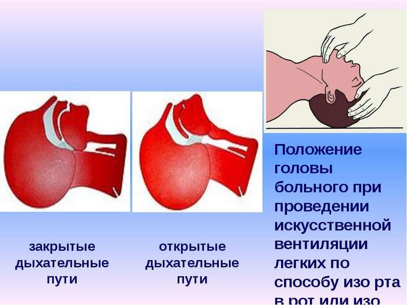 закрытые дыхательные пути открытые дыхательные пути Положение головы больного...