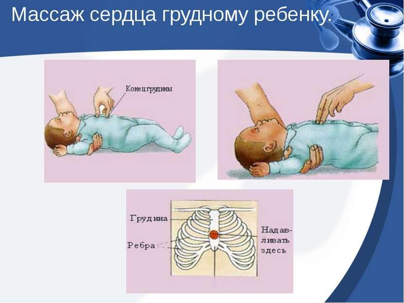 Массаж сердца грудному ребенку.