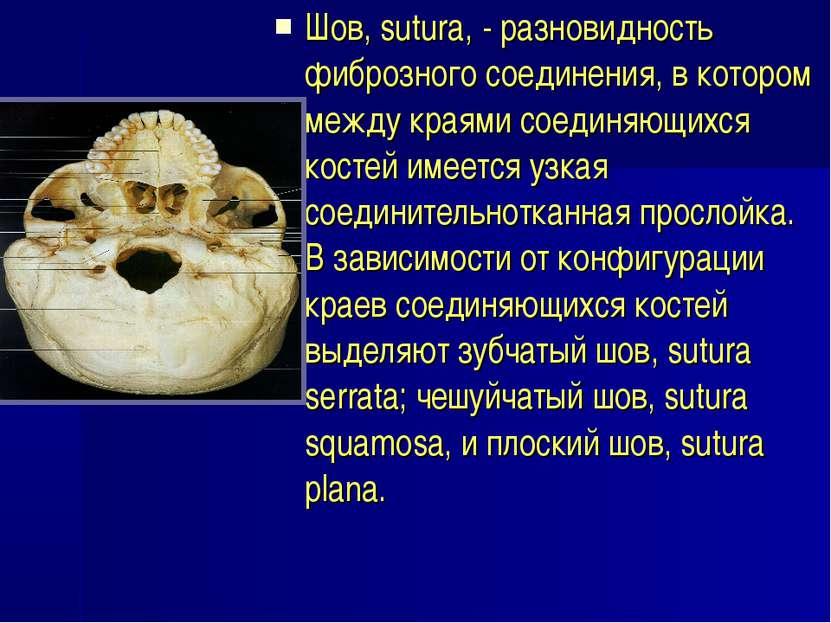 Шов, sutura, - разновидность фиброзного соединения, в котором между краями со...