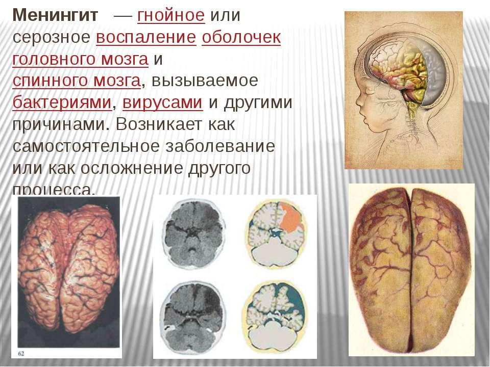Менингит — гнойное или серозное воспаление оболочек головного мозга и спинн...
