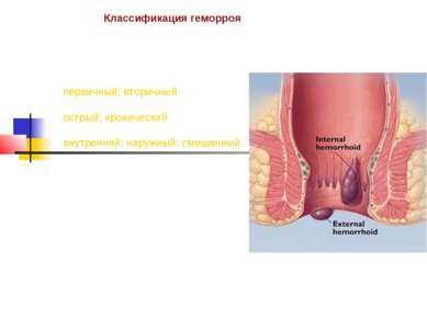 Классификация геморроя первичный; вторичный острый; хронический внутренний; н...