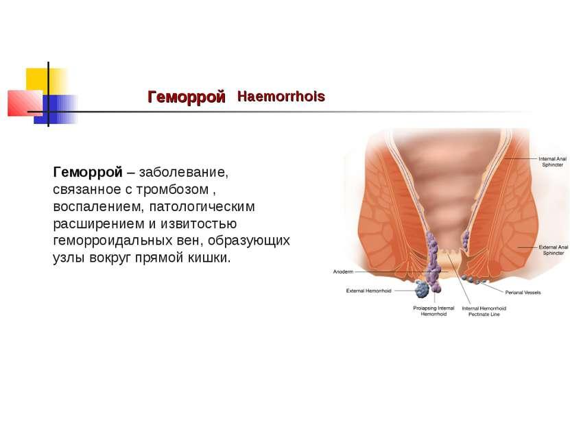 Геморрой Haemorrhois Геморрой – заболевание, связанное стромбозом, воспален...