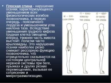 Плоская спина- нарушение осанки, характеризующееся уменьшением всех физиолог...