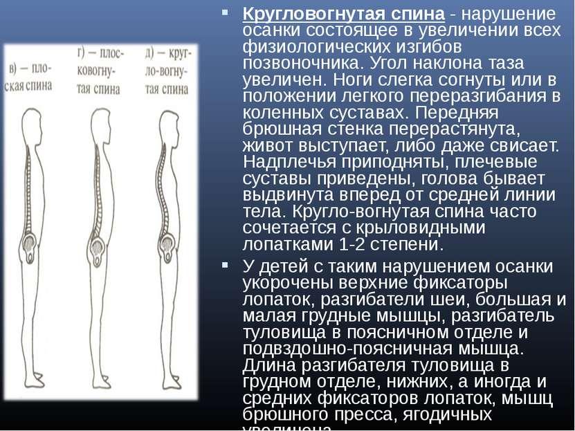 Кругловогнутая спина- нарушение осанки состоящее в увеличении всех физиологи...