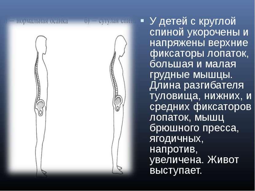 У детей с круглой спиной укорочены и напряжены верхние фиксаторы лопаток, бол...