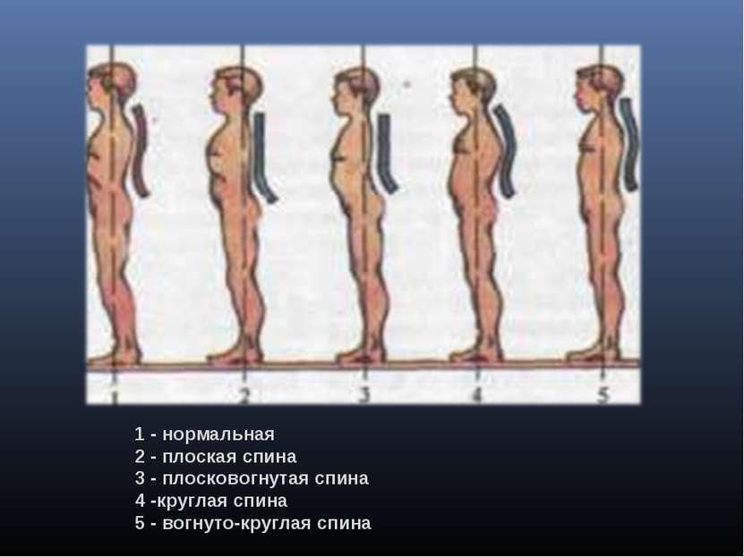 1 - нормальная 2 - плоскаяспина 3 -плосковогнутаяспина 4 -круглаяспина 5 ...