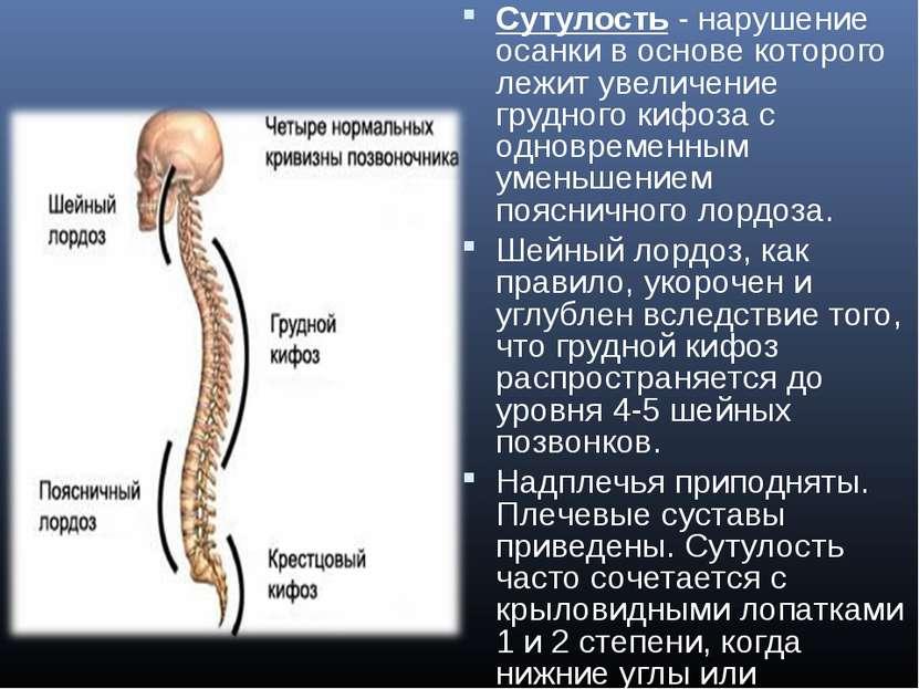 Сутулость- нарушение осанки в основе которого лежит увеличение грудного кифо...