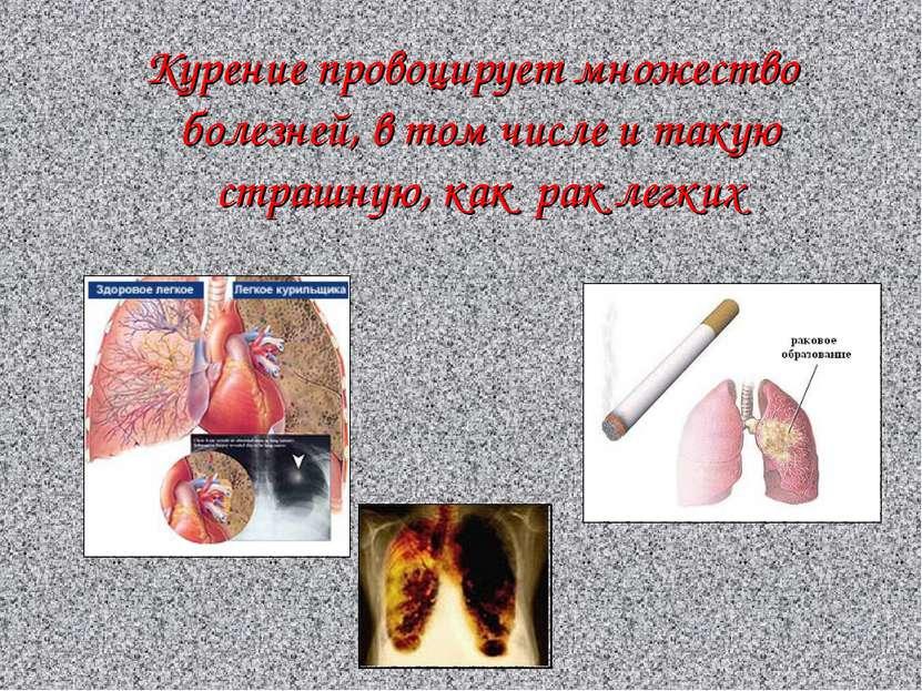Курение провоцирует множество болезней, в том числе и такую страшную, как рак...