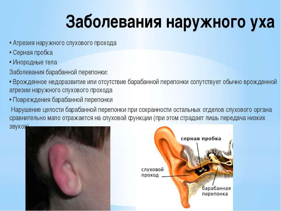 Заболевания наружного уха • Атрезия наружного слухового прохода • Серная проб...