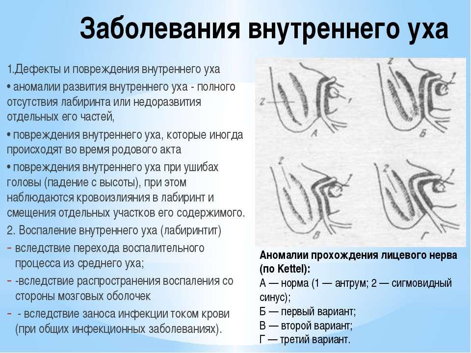 Заболевания внутреннего уха 1.Дефекты и повреждения внутреннего уха • аномали...