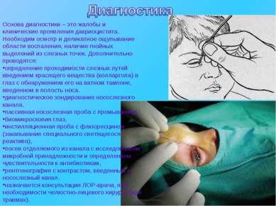 Основа диагностики – это жалобы и клинические проявления дакриоцистита. Необх...