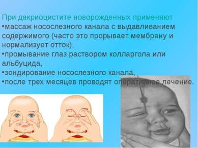 При дакриоцистите новорожденных применяют массаж носослезного канала с выдавл...