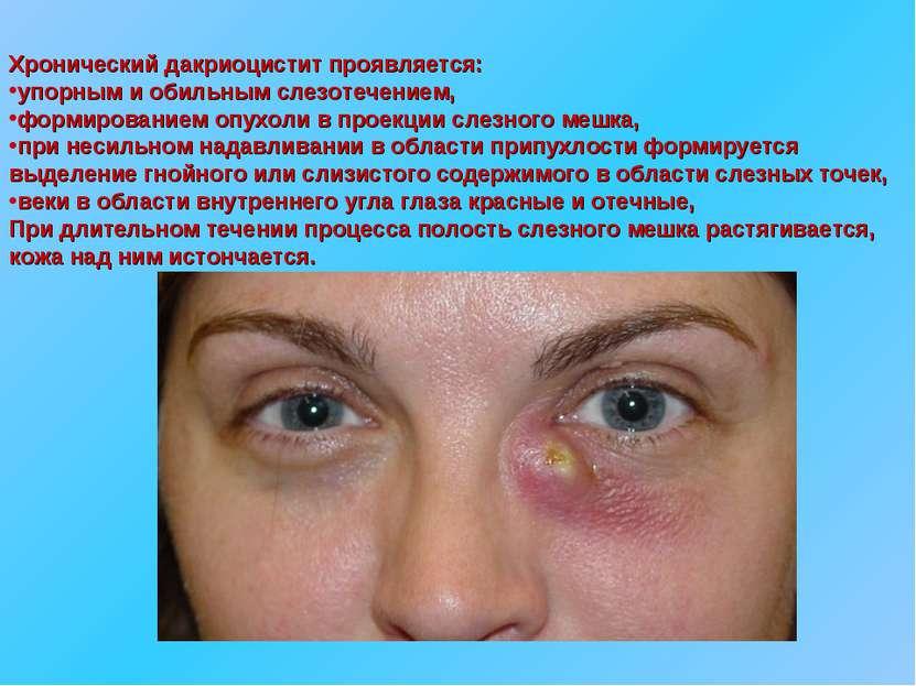 Хронический дакриоцистит проявляется: упорным и обильным слезотечением, форми...