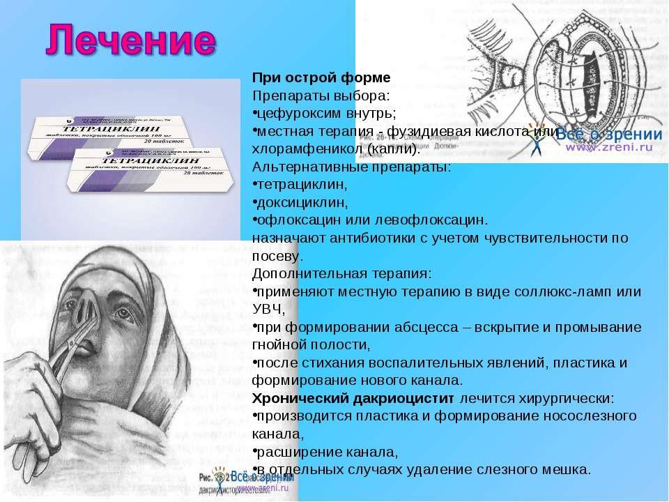При острой форме Препараты выбора: цефуроксим внутрь; местная терапия - фузид...