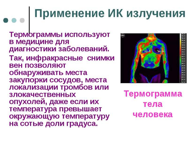 Применение ИК излучения Термограммы используют в медицине для диагностики заб...