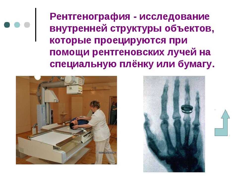 Рентгенография - исследование внутренней структуры объектов, которые проециру...