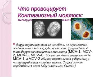 Что провоцирует Контагиозный моллюск: Фильтрующий вирус группы оспенных вирус...