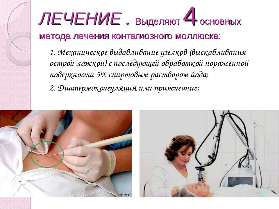 ЛЕЧЕНИЕ . Выделяют 4 основных метода лечения контагиозного моллюска: 1. Механ...