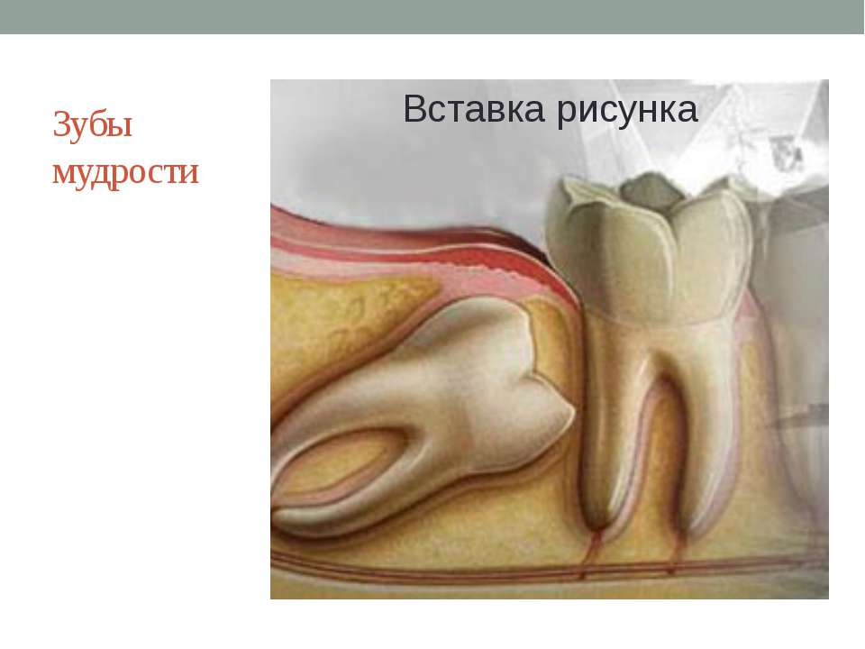 Зубы мудрости Животные: пережевывание пищи. У человека могут использоваться к...