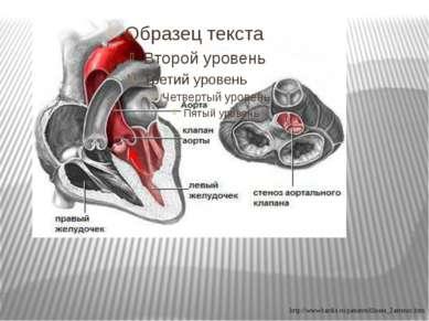 http://www.kardio.ru/patients/illness_2astenoz.htm
