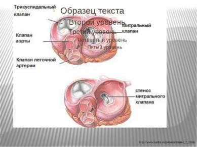 http://www.kardio.ru/patients/illness_2_2.htm